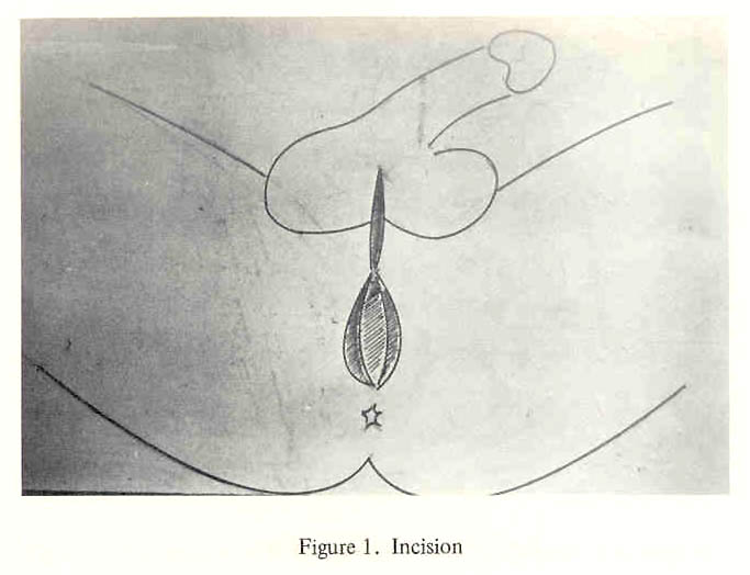 Dr  Georges Burou's pioneering technigue for male-to-female