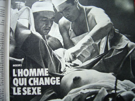 Dr. georges burous pioneering technigue for male to female surgical