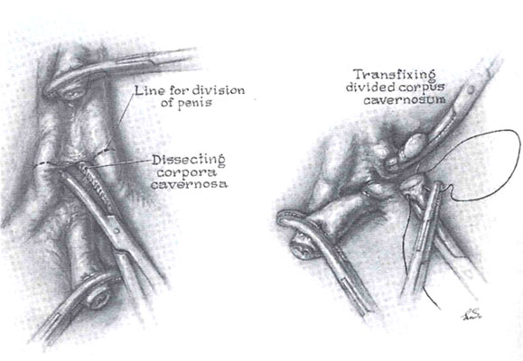 Figure 7. The perineal dissection.